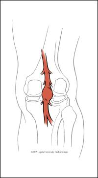 popliteal aneurysm